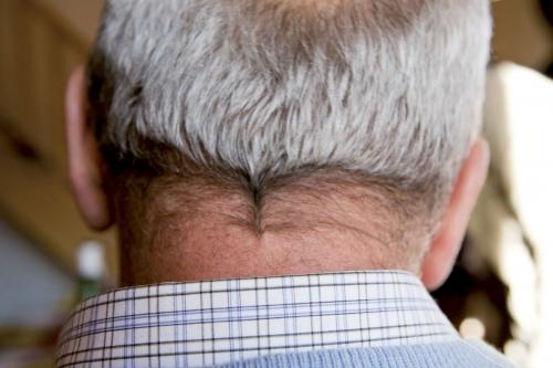 Nuque d'un homme aux cheveux gris | Philippe DUREUIL Photographie